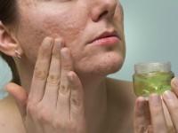 Akne: Was hilft wirklich gegen die Hautkrankheit?