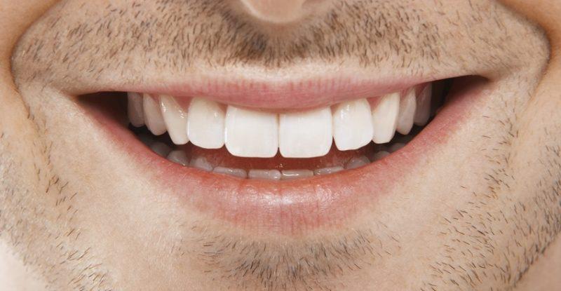 Zahnästhetik: Schönheit und Funktion vereint